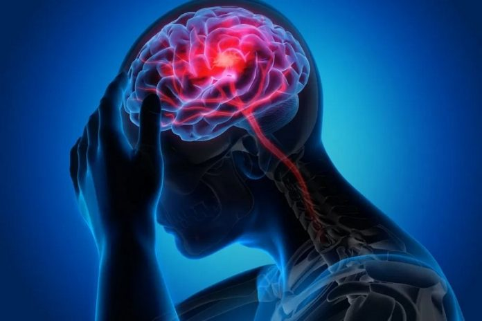 how to get rid migraines