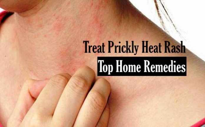 Treatments for heat rash